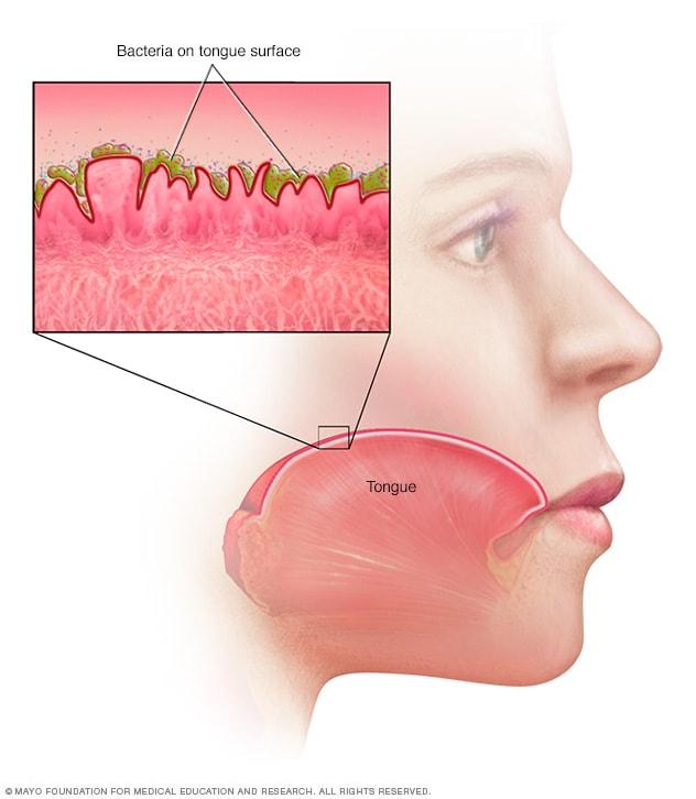 Permukaan lidah yang mikroskopis tidak rata dapat menjebak bakteri yang menghasilkan bau, berkontribusi pada bau mulut.